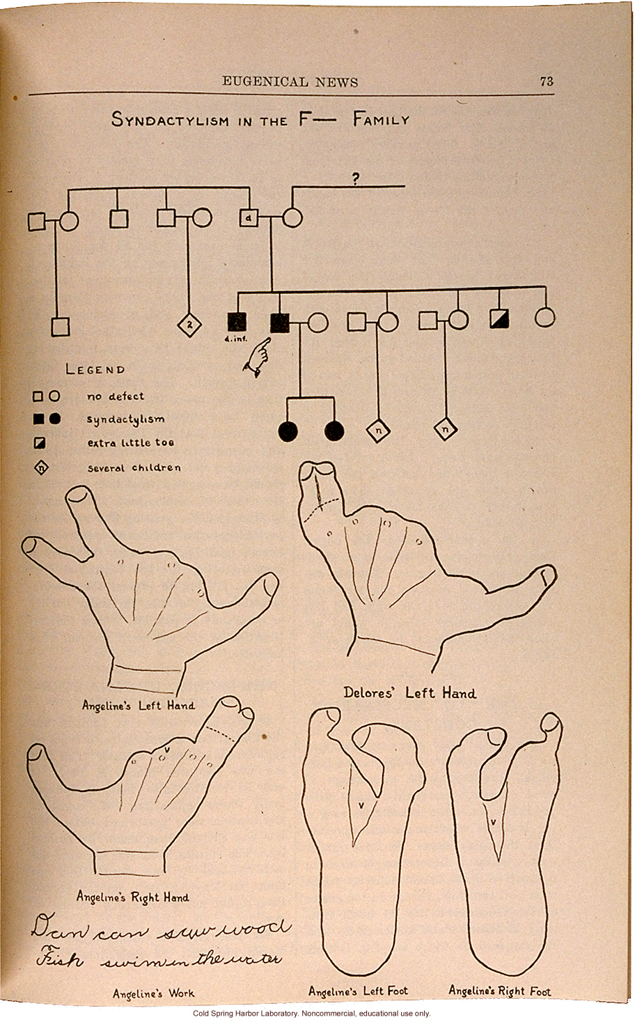 &quote;Syndactyly in the F__ Family,&quote; Eugenical News (vol. 15), fused fingers or toes -- later shown to be an autosomal dominant trait
