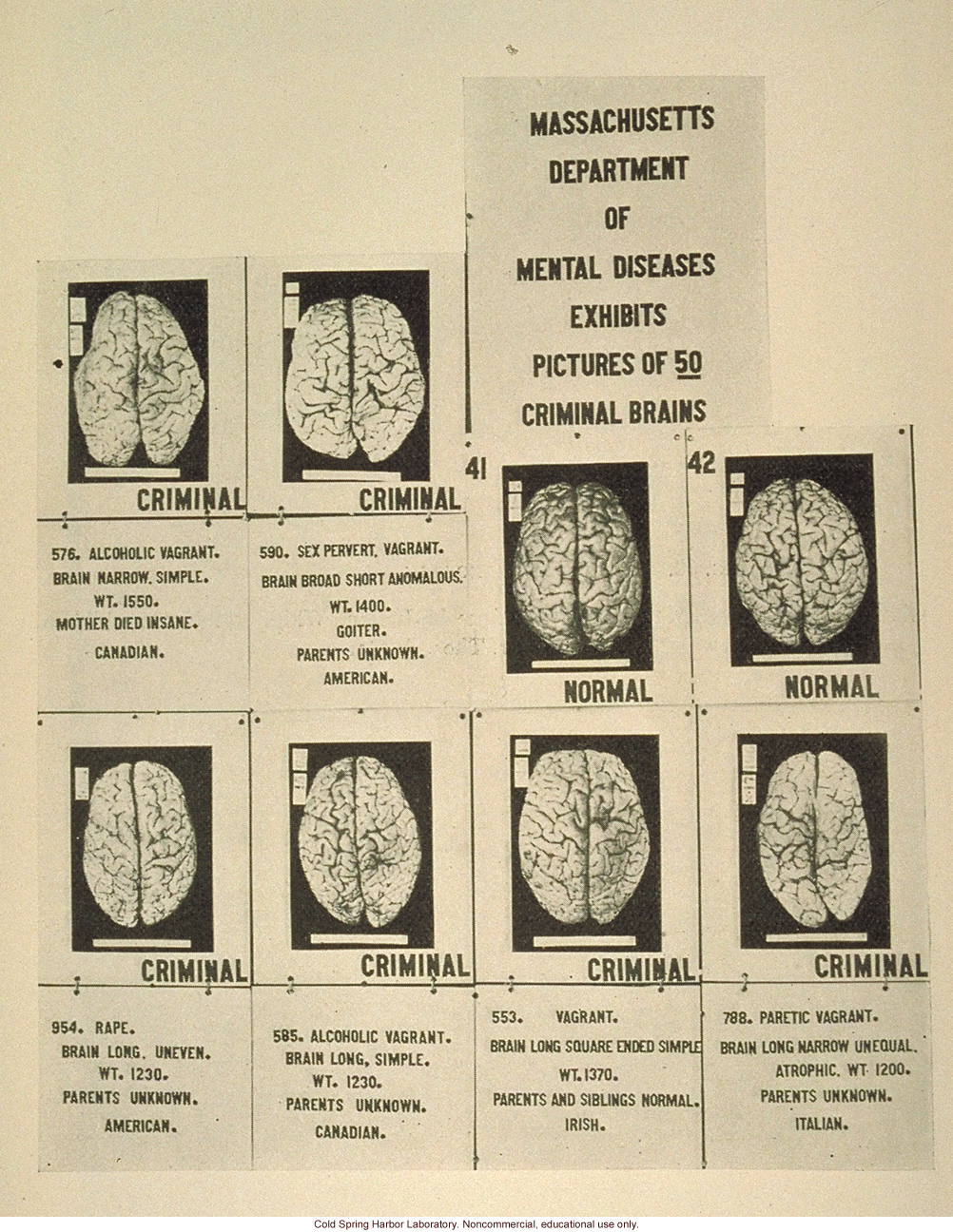 &quote;Massachusetts department of mental diseases exhibits pictures of 59 criminal brains&quote;