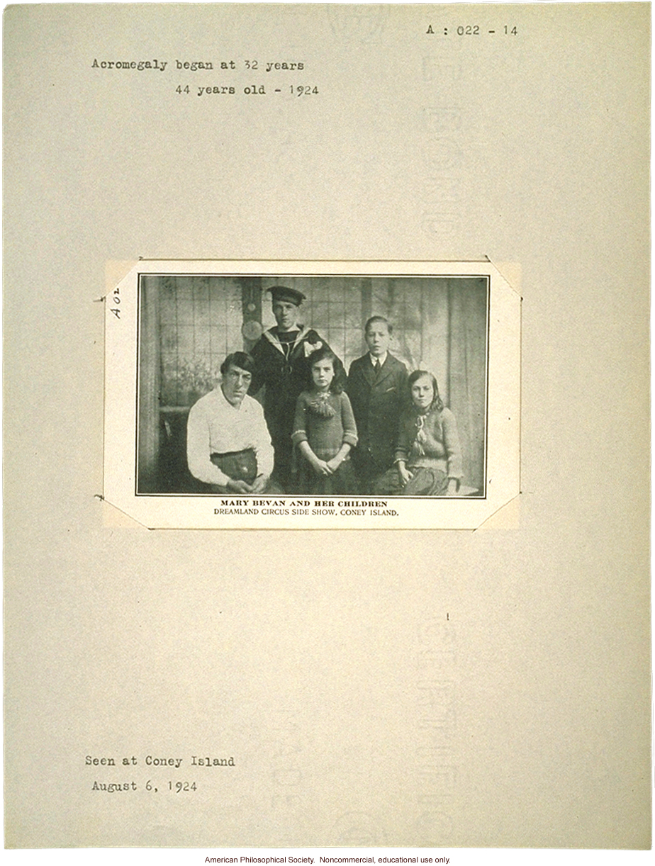 &quote;Mary Bevan and her children,&quote; acromegaly