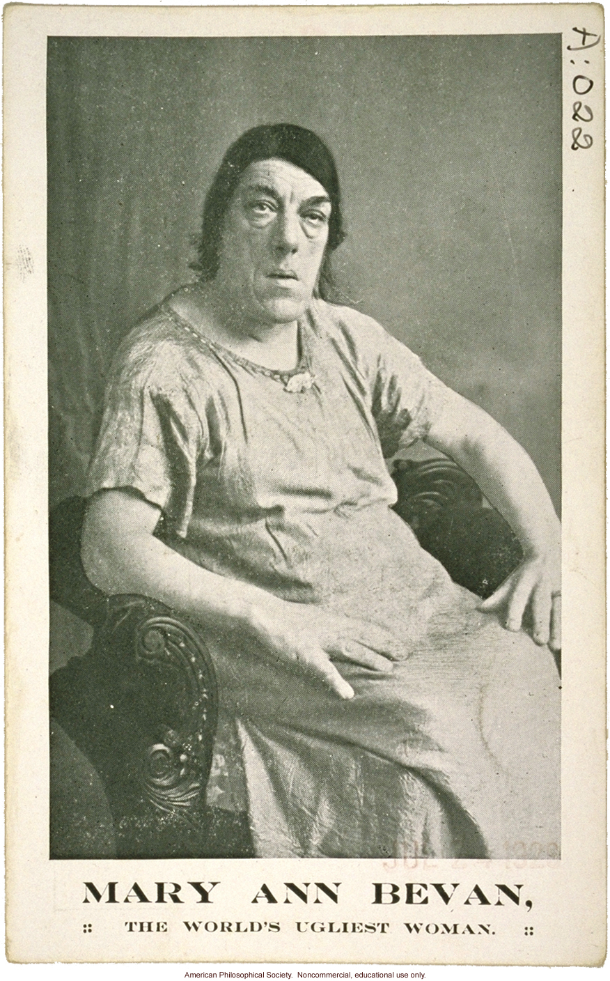 &quote;Mary Ann Bevan, the world's ugliest woman,&quote; acromegaly