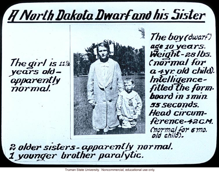 &quote;A North Dakota dwarf and his sister&quote;