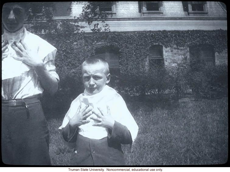 Two boys with polydactyly.