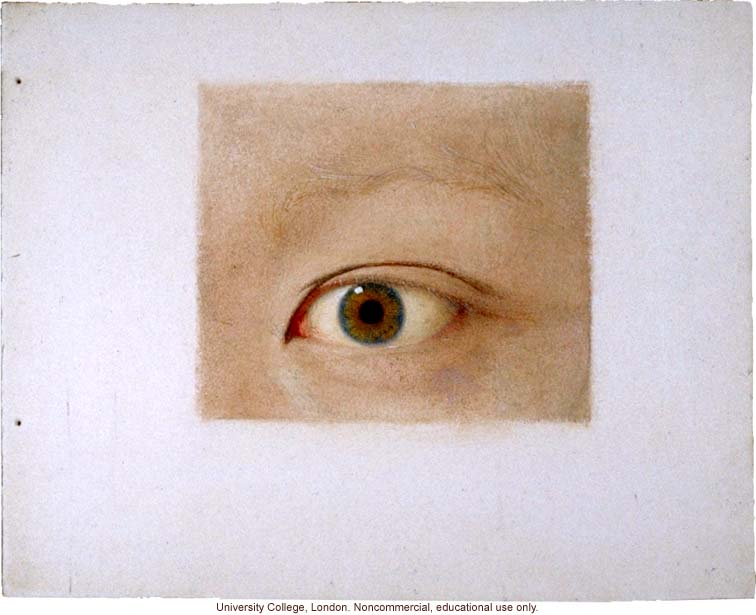 Normal and albino human eyes, for publication in &quote;Albinism in Man,&quote; by K. Pearson, E. Nettleship, and C.H. Usher (1911)
