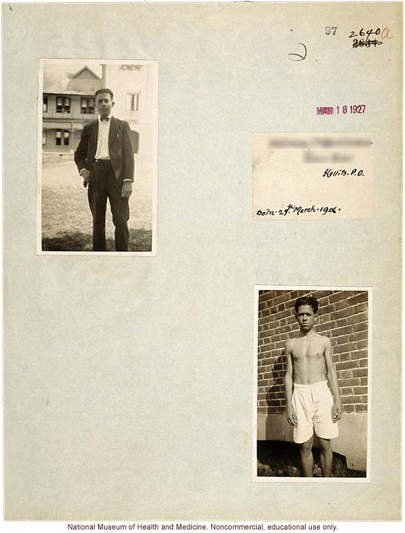 Mico College anthropometric case 3: photos, measurements, pedigree, notes; by Morris Steggerda for <i>Race Crossing in Jamaica</i>