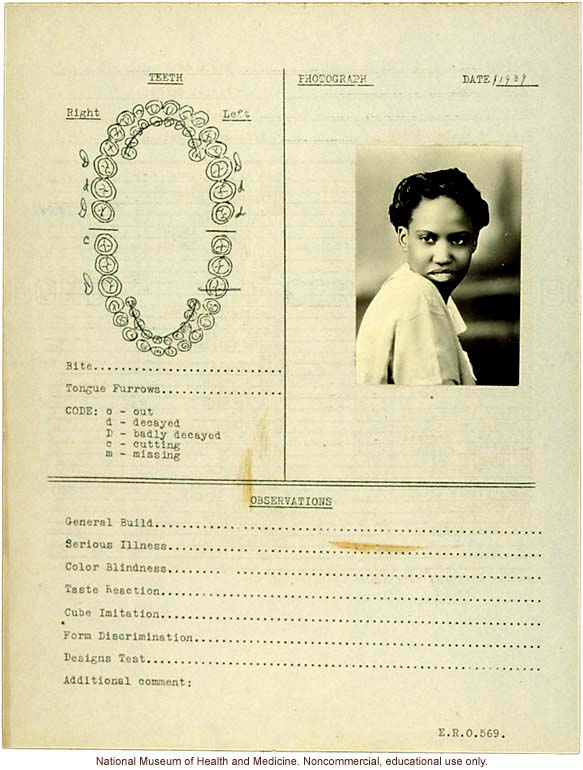 Female anthropometric case, from &quote;100 College Girls,&quote; Tuskegee Institute, Alabama (measurements, dental chart, and photograph)