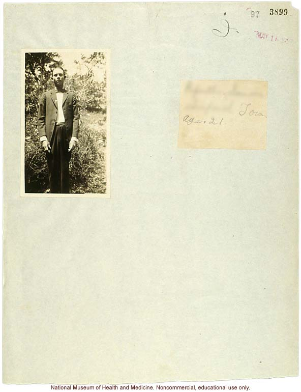 Seaford Town male anthropometric case: photo, measurements, finger prints, Schedule 3, notes; by Morris Steggerda for <i>Race Crossing in Jamaica</i>
