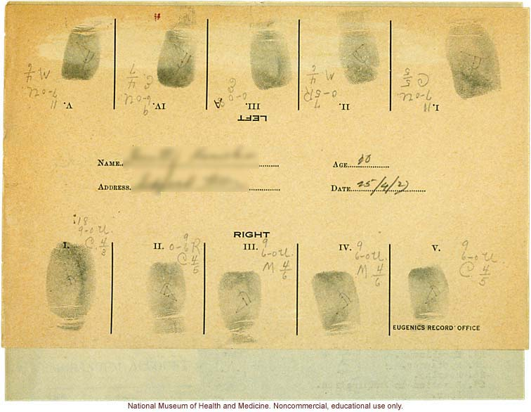 Seaford Town female anthropometric case: photos, measurements, finger prints, Schedule 3; by Morris Steggerda for <i>Race Crossing in Jamaica</i>
