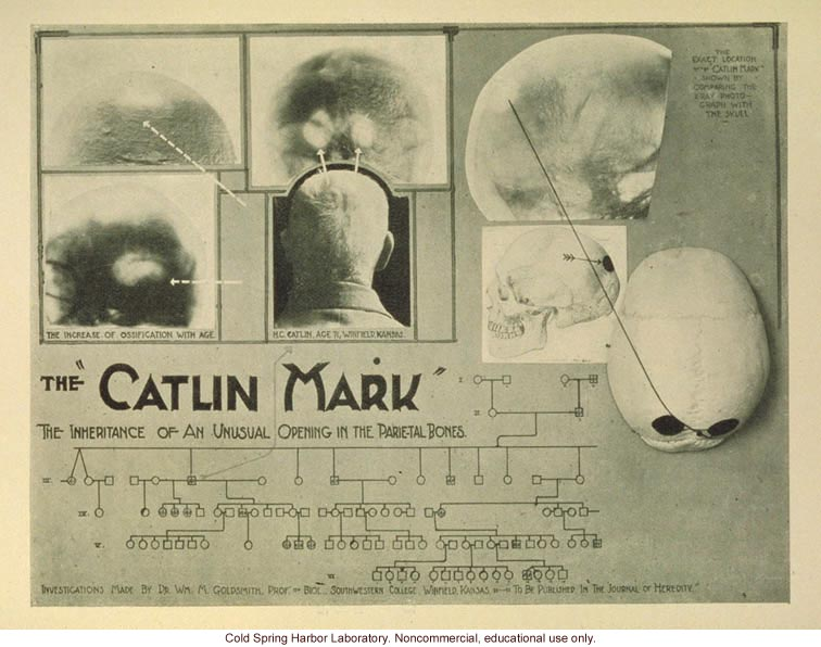 &quote;The Catlin Mark, the inheritance of an unusual opening in the parietal bones&quote;