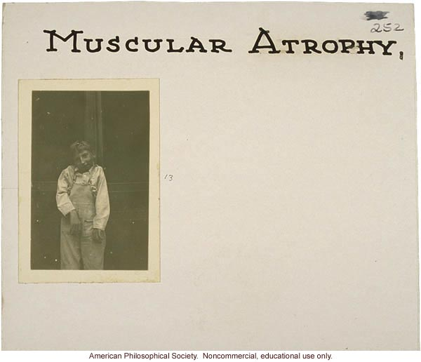 &quote;Muscular atrophy,&quote; flash cards on genetic defects