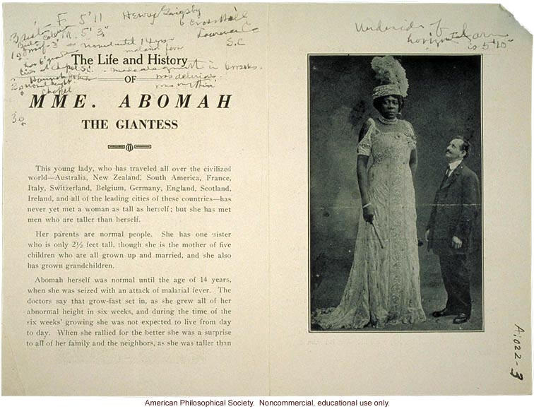 Mme. Abomah, giantism