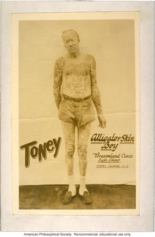 &quote;Toney, alligator skin boy, Dreamland Circus side show, Coney Island,&quote; with icthyosis a skin trait