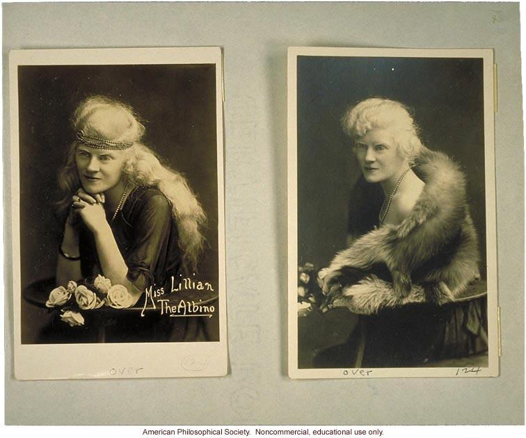 &quote;Miss Lillian the albino&quote;