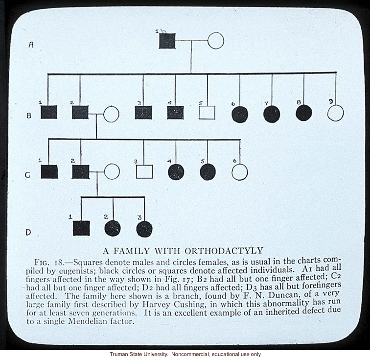 Pedigree: &quote;A family with orthodactyly&quote;